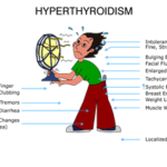 Hyperthyroidism, how it affected my life
